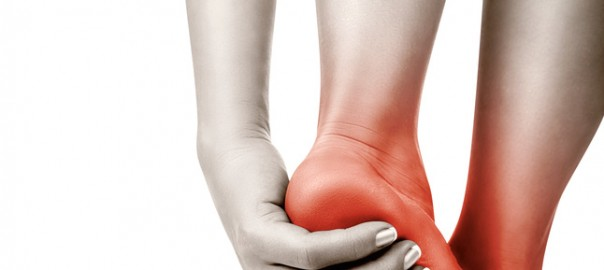 Plantar Fasciitis Heel Pain Arch Pain Palermo Physiotherapy Wellness Centre Oakville