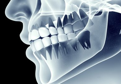 Xray of Jaw showing Oakville Physio for TMJ