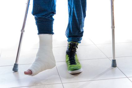 Showing leg fracture or broken leg and physiotherapy after injury provided virtually by Oakville Palermo Physio, to Ontario, Halton, acton, Georgetown, Burlington, Milton