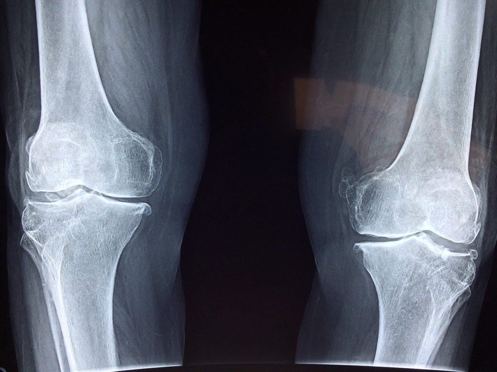 image depicting knee x-ray results in a blog by Oakville Physio discussing when imaging should be done, and when there may be more harm than good